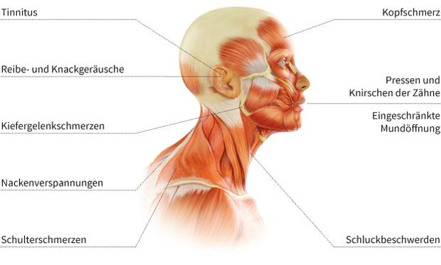 Funktionstherapie - Schaubild menschlicher Oberkörper und Kopf