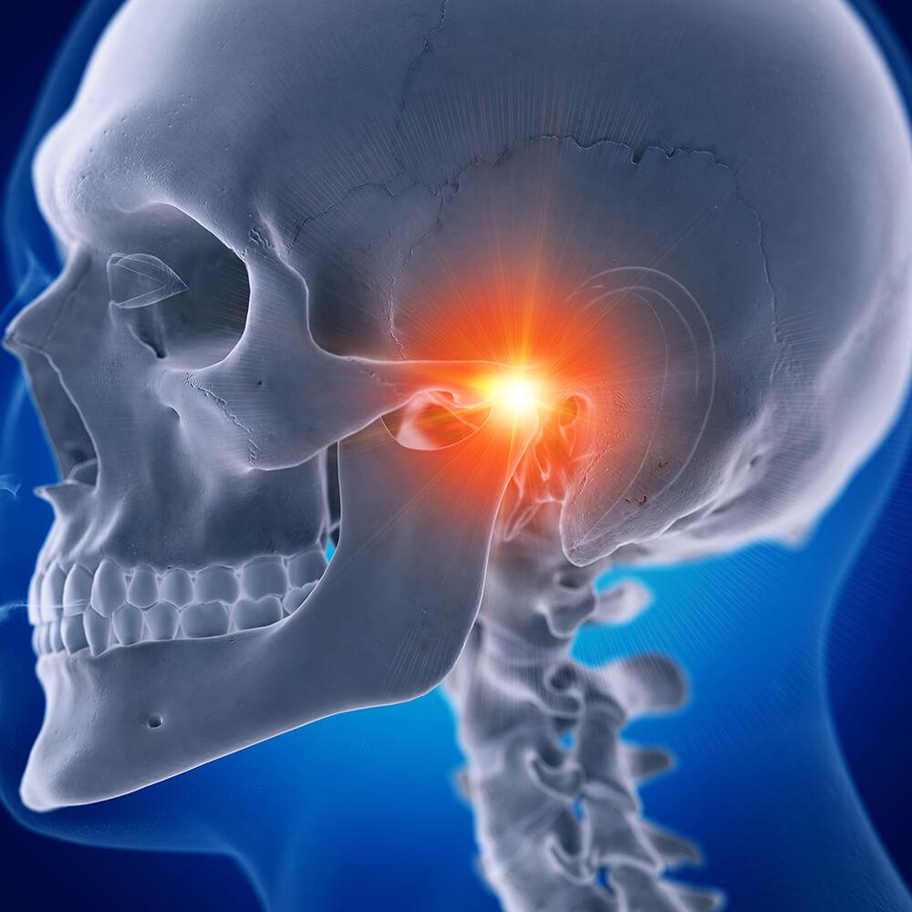 3D Visualisierung eines schmerzhaften Kiefergelenks