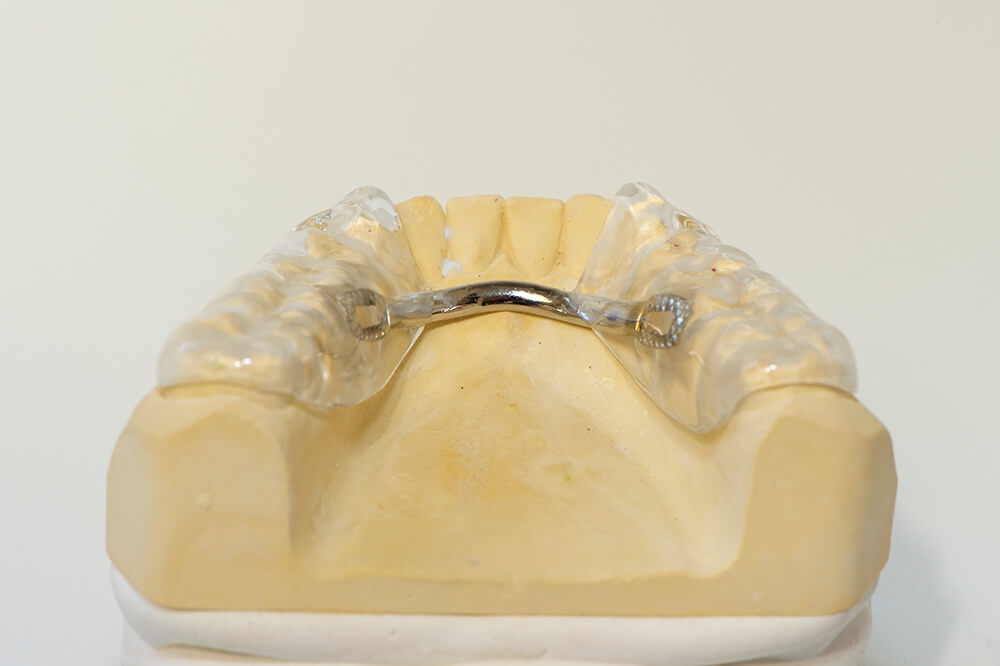 Funktionstherapie - Zahnschiene Unterkiefer von hinten