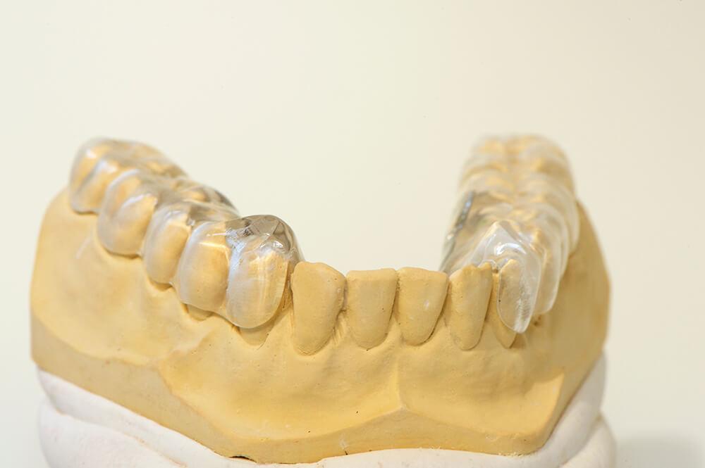 Funktionstherapie - Zahnschiene Unterkiefer von vorn