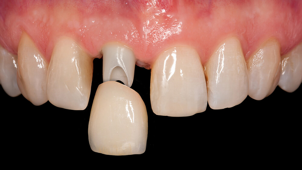 Krone auf Zahnimplantat