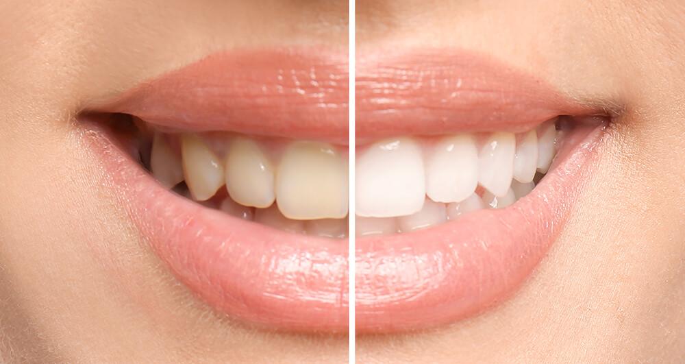 Lächelnde Frau vor und nach dem Zahnaufhellungsverfahren - Bleaching