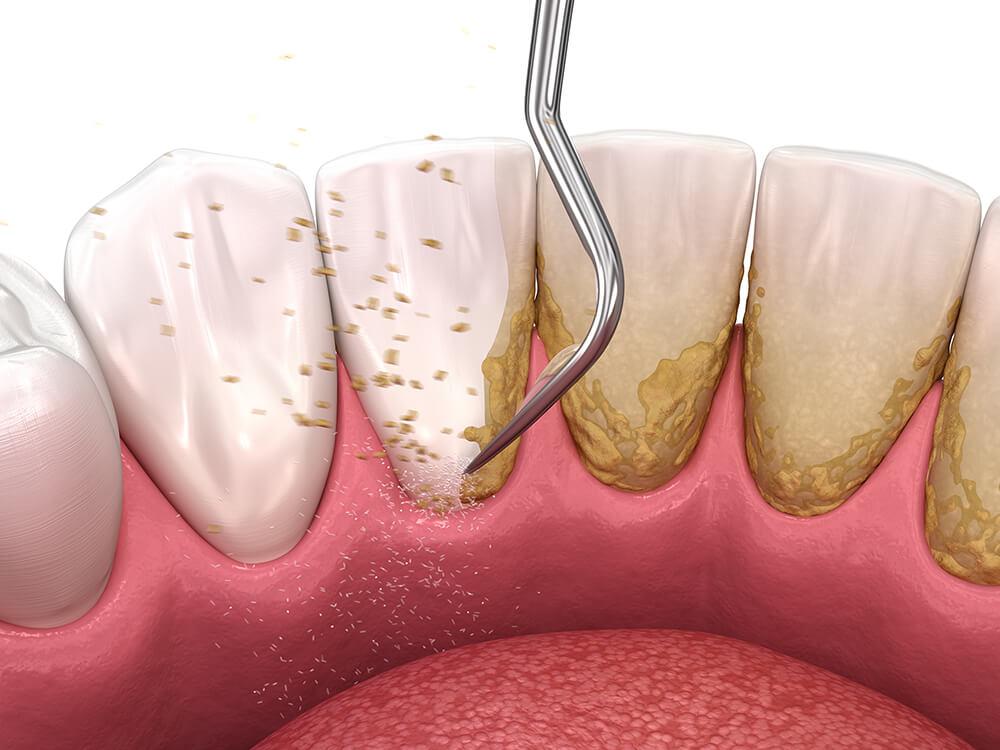 Mundhygiene - Professionelle Zahnreingung
