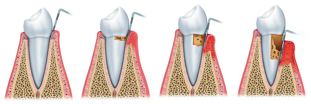 Parodontologie: Sequenz der Parodontitis