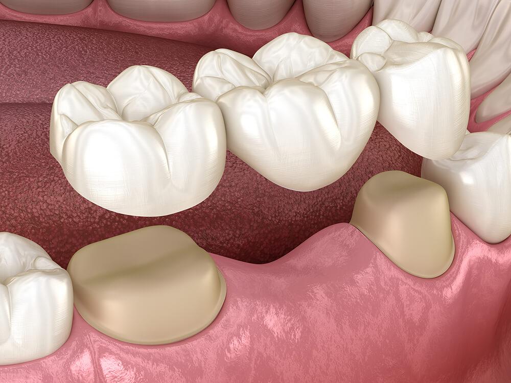 Zahnbrücke mit drei Zähnen über Molar und Prämolar - 3D-Illustration