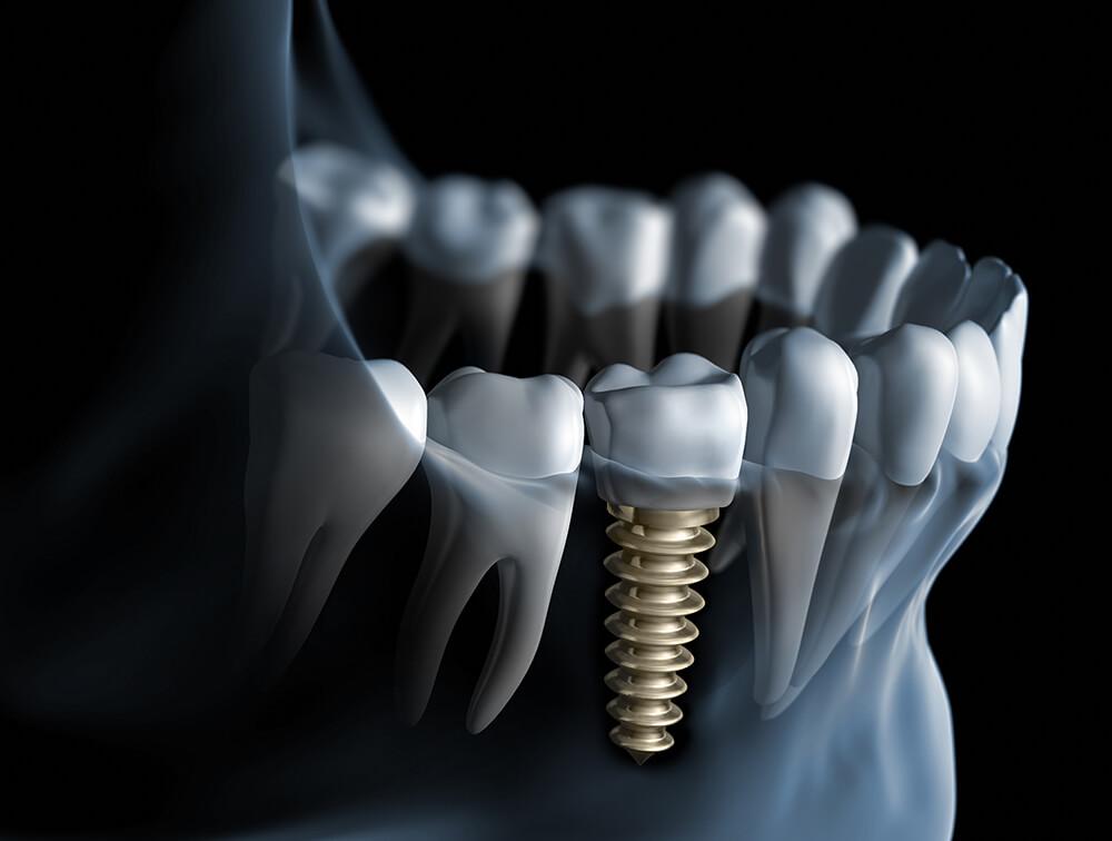 Zahnimplantat mit Krone im Unterkiefer
