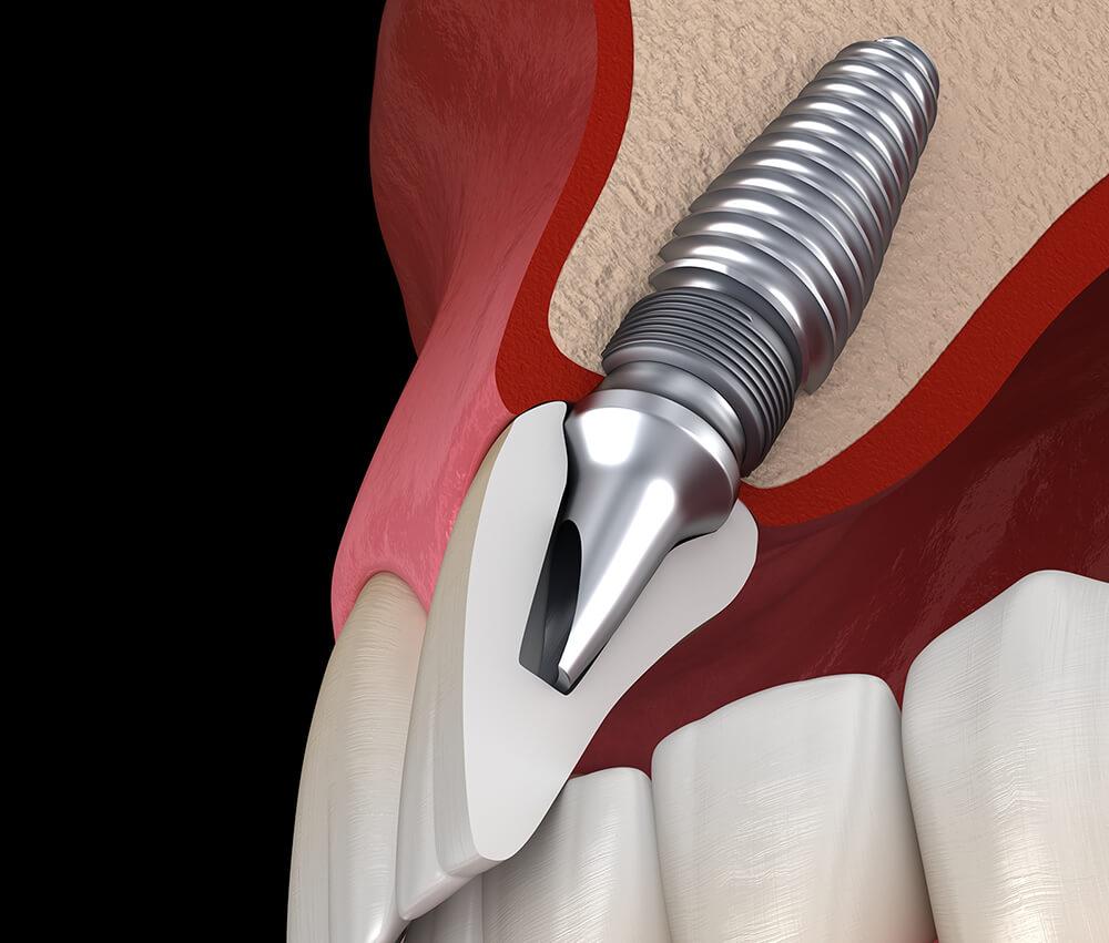 Zahnimplantat mit Krone - 3D Querschnitt