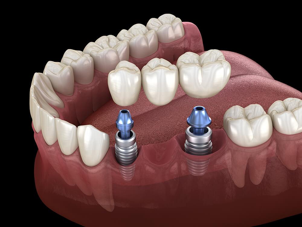 Drei Zahnimplantate mit Krone im Unterkiefer